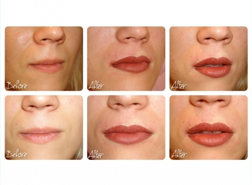 Lip Scar Pigment Recovery and Full Lip Colour by El Truchan @ Perfect Definition