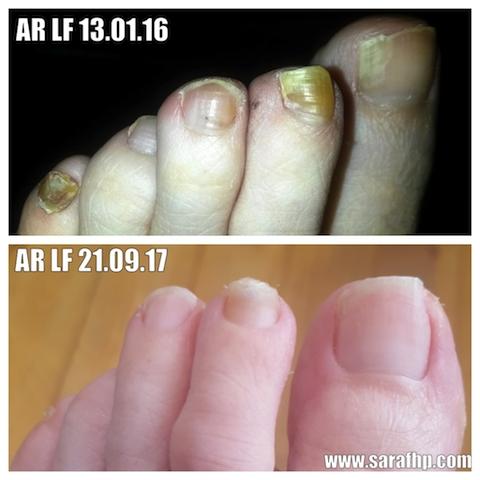 AR LF 13 01 16 - 21 09 17 comparison photo