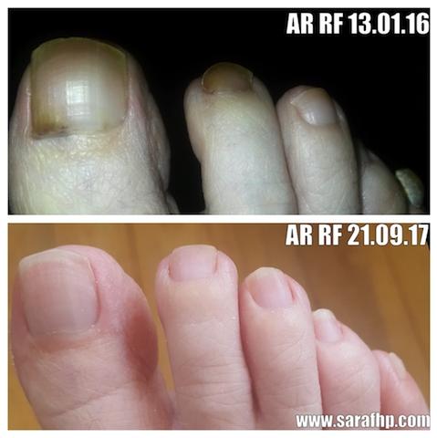 AR RF 13 01 16 - 21 09 17 comparison photo