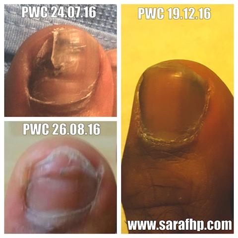 PWC 24 07 16 - 19 12 16 comparison photo