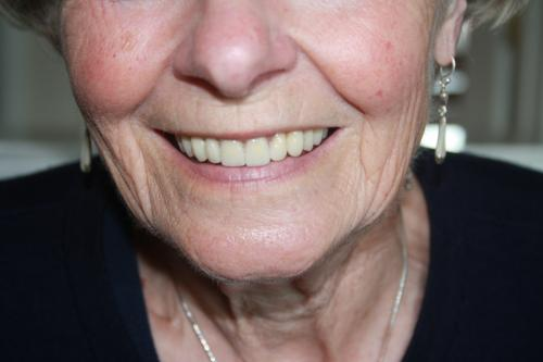 after treatment with new dentures