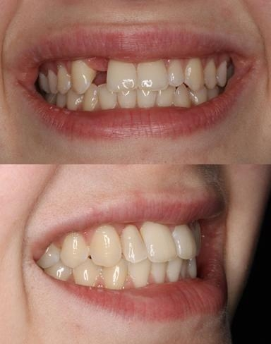 Single tooth denture. This photo shows the importance of using denture teeth of the highest quality. This totally natural look is enhanced by Michelle Drury's expertise and natural artistic ability in tooth set-up.