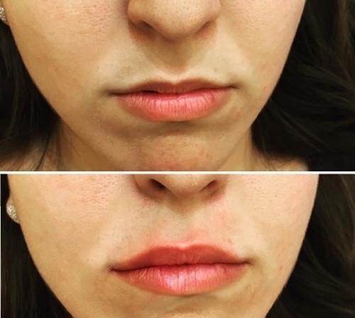 Natural Lip Fillers London