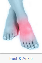 The Hertfordshire Orthopaedic Centre specialises in the following foot and ankle conditions and procedures: Ankle Injuries; Achilles Tendon Problems; Bunions; Claw and Hammer Toe; Planter Fasciitis; Morton's Neuroma; Ingrown Toenail; Osteoarthritis.