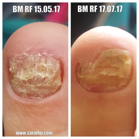 BM Rf 1st 15 05 17 - 17 07 17 comparison photo