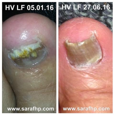 HV 5 01 05.01.16 - 16 27 06 16 comparison photo ( 5 months)