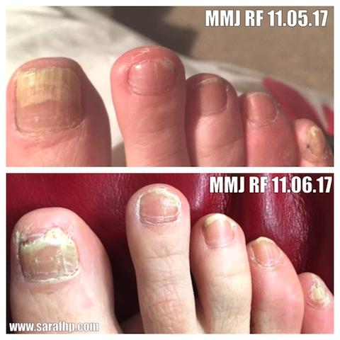 Mmj Rf 11 05 17 - 11 06 17 comparison photo