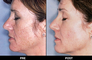 Before And After Triniti Treatments