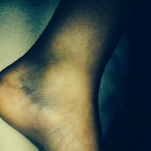 Photo 3 Injury Showing Extensive Bruising To Ankle
