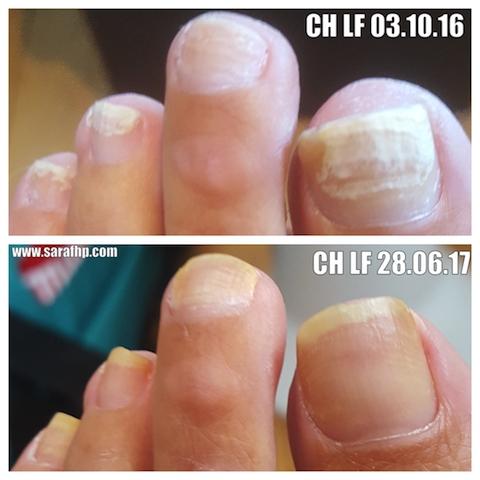 CH LF 03 10 16 - 28 06 17 comparison photo
