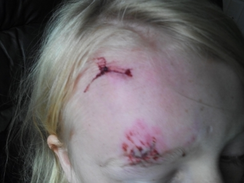 Facial injuries - tripping accident claim