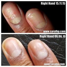 BN Right Hand 15 11 15 - 06 06 16 comparison photo ( 7 months )