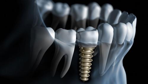 Dental Implant for 500 euro